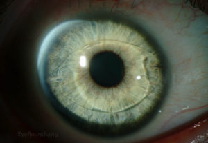The Verisyse or Artisan ICL sits just in front of the pupil.